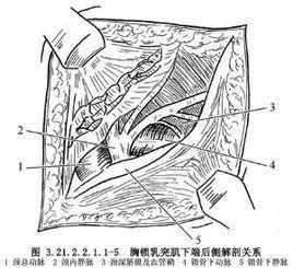 胸锁乳突肌下端切断术emmet教程图片